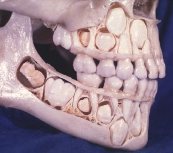 In case you've ever wondered, here's what a young person's skull looks like with all the baby teeth still intact.