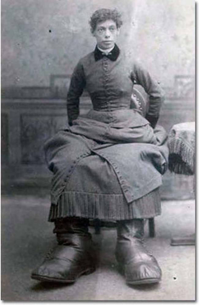 Fannie had a condition known as Milroy Disease, which caused her feet to grow to an abnormally large size. At their biggest, her feet were 17 inches long.